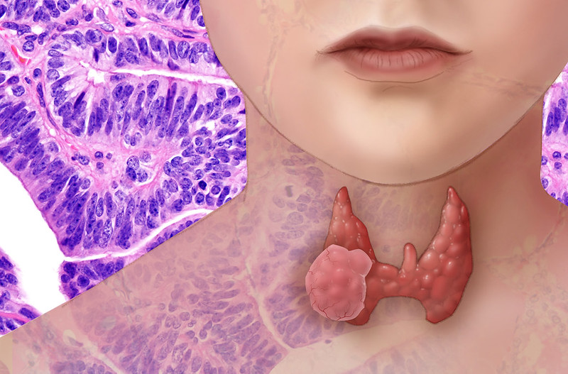 Need to check your thyroid? Possibly not